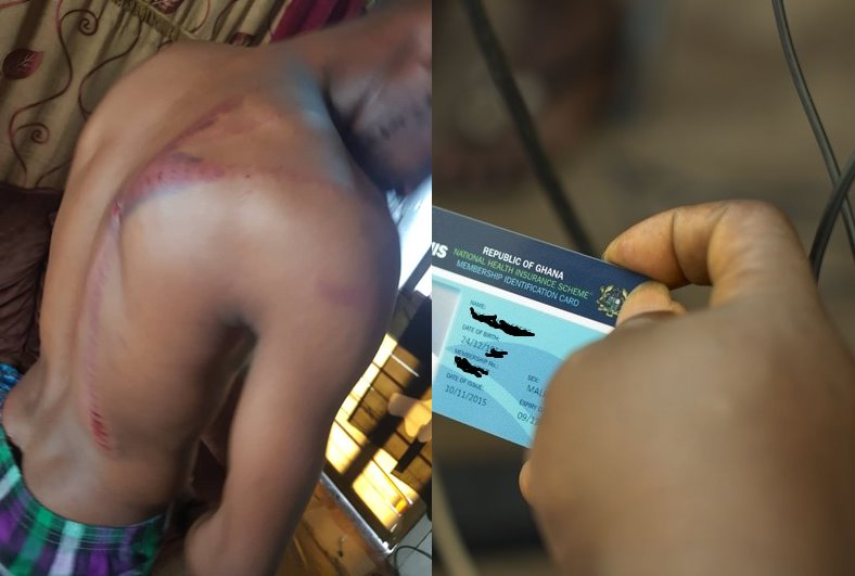 Man Beaten at Kempinski Hotel for Trying to Pay for Food with His National Health Insurance Card